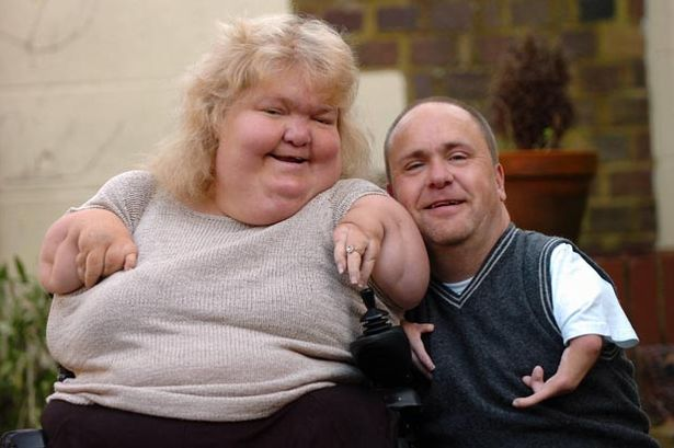 Thalidomide survivors Darren Mansell and Louise Medus