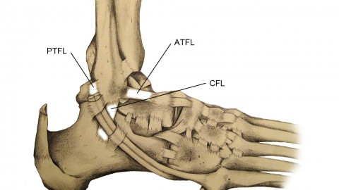 Know Ankle Sprain: Cure and Remedy.