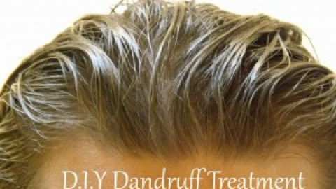 Beat Dandruff This Winter By These 3 Secret Home Remedies