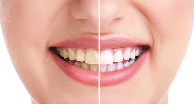 Want Your Shinning White Teeths Back? Try These Home Remedies