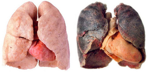 long-effects-of-smoking-respiratory-System