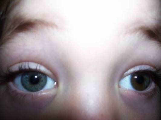 Happy Different Colored Eyes Day 2014 HD Images, Wallpapers For Whatsapp, Facebook