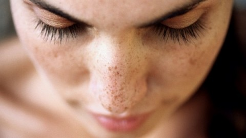 4 Ways To Deal With Spots And Blemishes